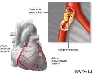 Corazón colesterol