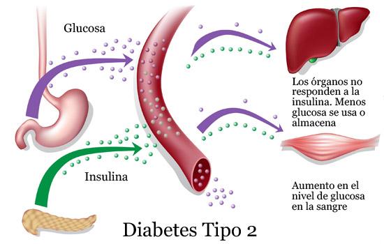 Asociación Mejicana de Diabetes